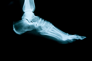 Foot Traumas and Fractures